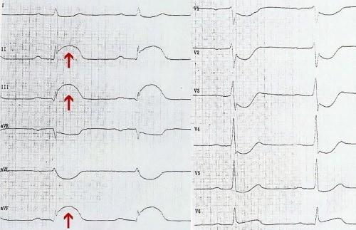болезни сердца инфаркт на экг