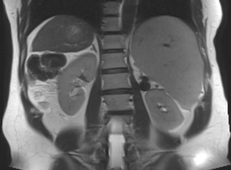 МРТ снимки почек