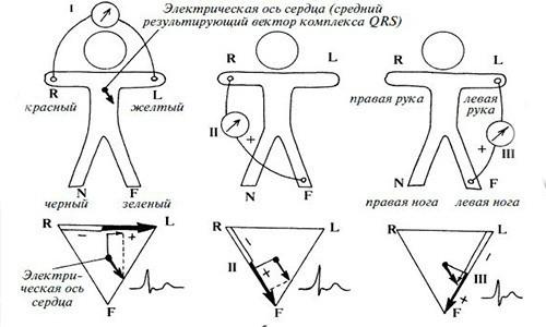 Схемы крепления электродов ЭКГ
