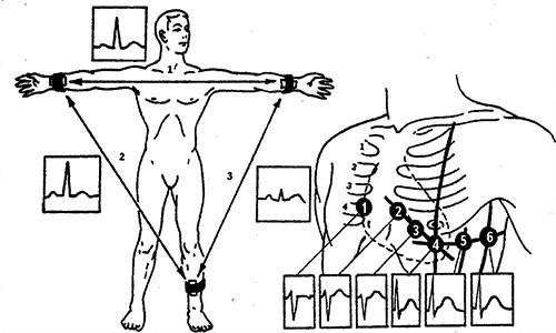 Методика наложения электродов