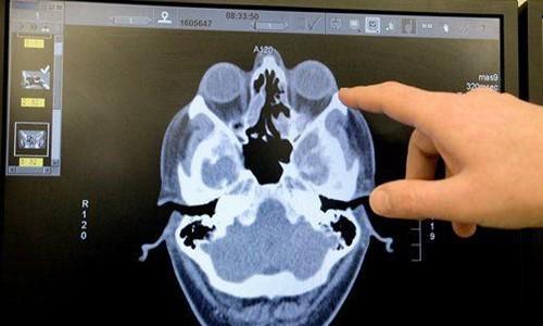 Результаты компьютерной томографии носовых пазух