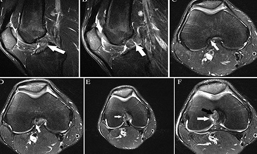 МРТ с контрастированием плюсы и минусы