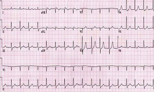 Электрокардиография для выявления заболеваний
