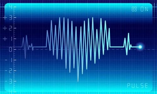 Нарушения сердечного ритма ЭКГ