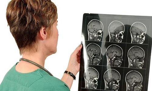 Выявление заболеваний с помощью компьютерной томографии