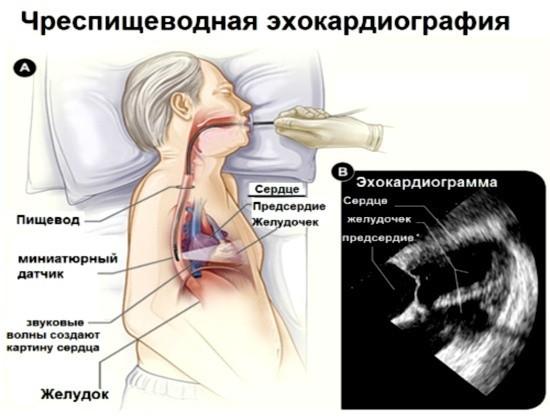 Ультразвуковое исследование сердца через пищевод