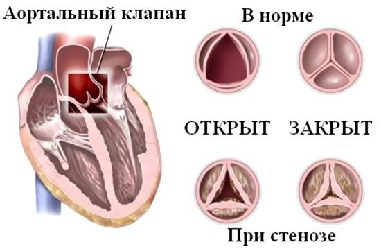 Стеноз устья аорты