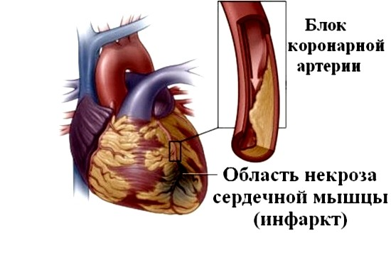 Так выглядит участок некроза сердечной мышцы
