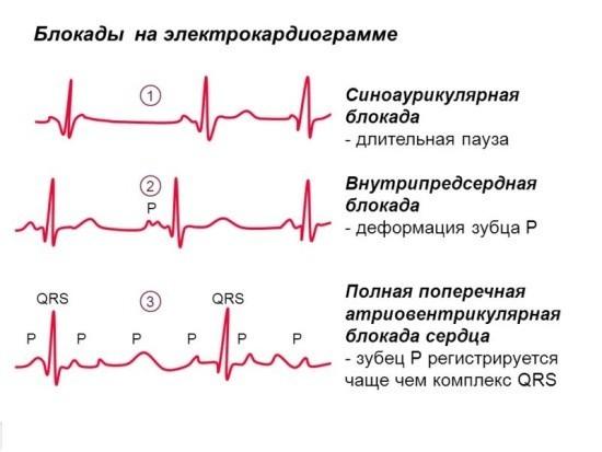 Изменения на электрокардиограмме