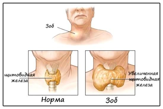 Що показує УЗД щитовидної залози? » журнал здоров'я iHealth 1