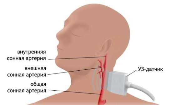 Методика проведения допплерографии сосудов шеи