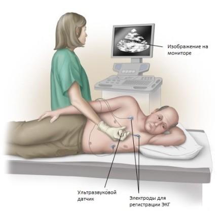Пациент на эхокардиографии