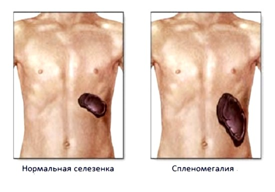 Патологическое увеличение размеров селезенки