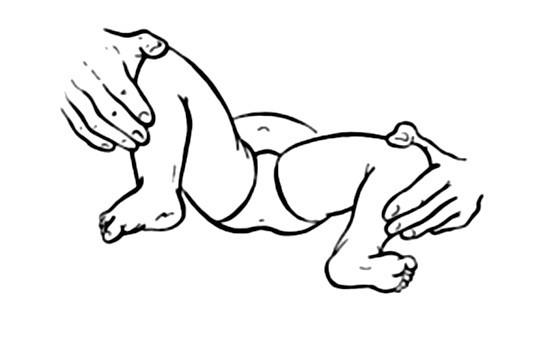ограничение тазобедренного сустава ребенка