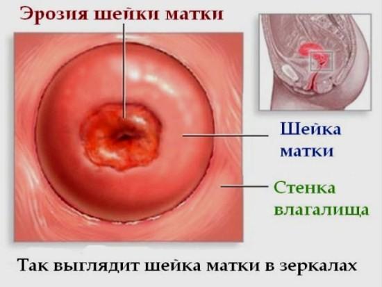 Одно из очень распространенных заболеваний гинекологической сферы