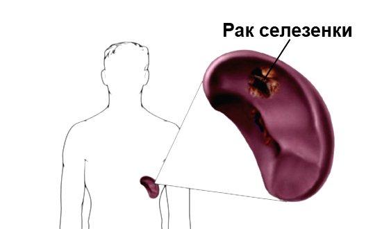 Рак селезенки