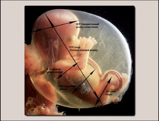 Фетометрия плода