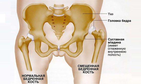 Тяжелая форма дисплазии тазобедренного сустава