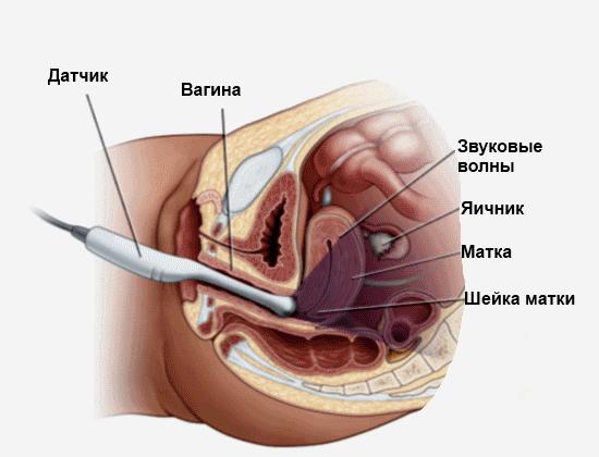 Ультразвуковое исследование через влагалище
