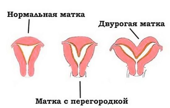 Двурогая матка и матка с перегородкой