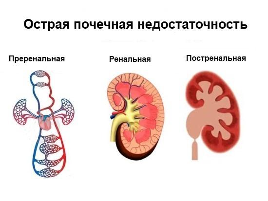 Преренальная, ренальная и постренальная ОПН