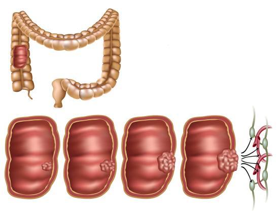 Опухоль толстого кишечника