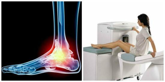 Процедура магнитно-резонансной томографии голеностопного сустава