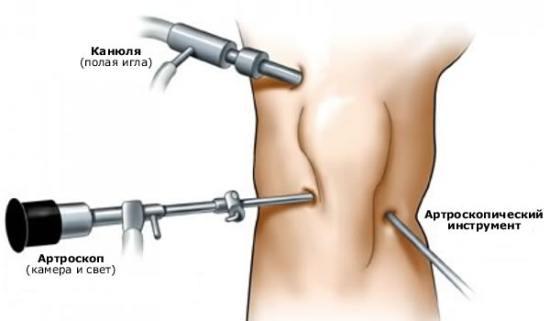 Сколько делается мрт коленного сустава кт тазобедренного сустава в москве ул маросейка 15 цена