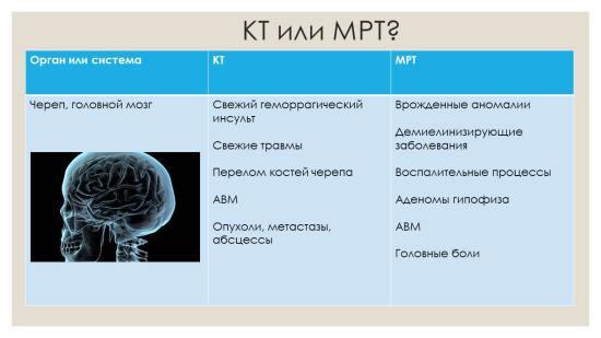 Проведение КТ незаменимо при геморрагическом инсульте