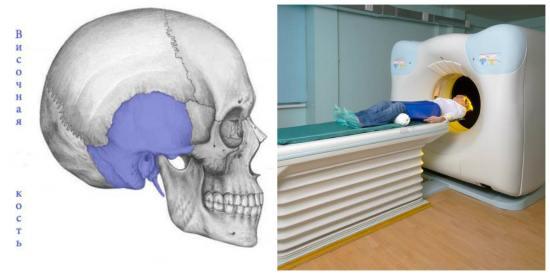 Компьютерная томография в отиартрии