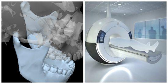 Магнитно-резонансная томография ВНЧС