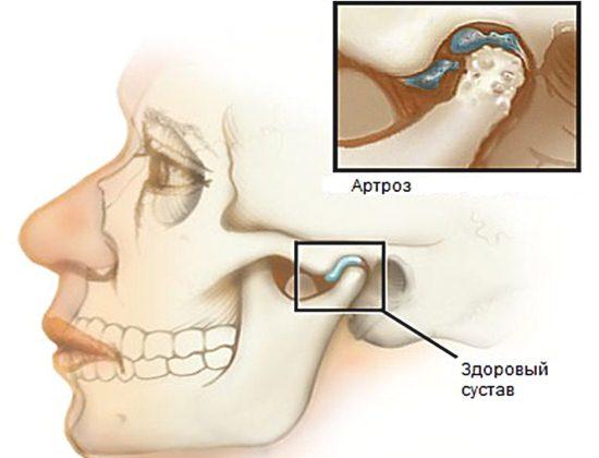 Артроз височно-нижнечелюстного сустава