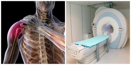 На плеевой сустав что лучше мрт или комп томограф рентгенограмма коленного сустава ребенка 8 лет