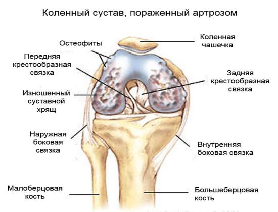 Хроническое дегенеративно-дистрофическое заболевание сустава