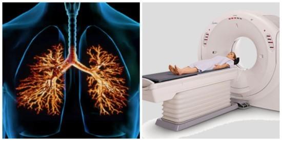 Магнитно-резонансная томомграфия легких