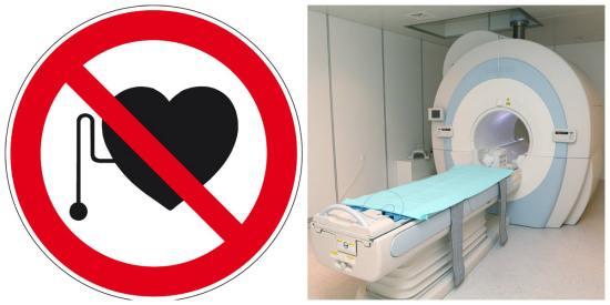 Для пациентов с искусственным водителем ритма МРТ противопоказана