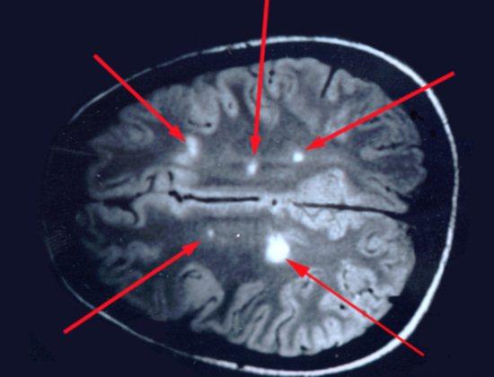 Магнитно-резонансная томография головного мозга при рассеянном склерозе