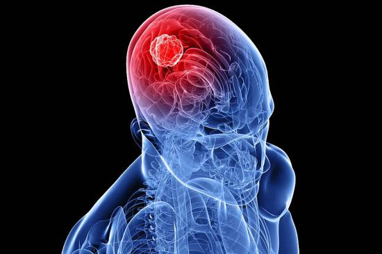 Нейроэктодермальная опухоль