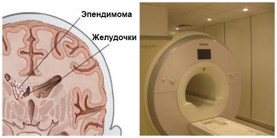 Эпендимарная опухоль