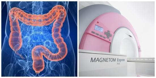 Магнитно-резонансная томография кишечника