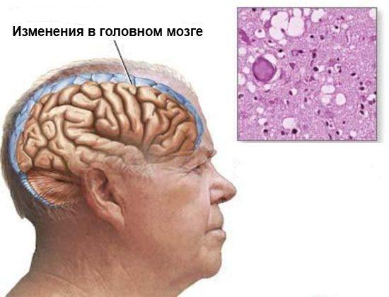 Мозг при сенильной деменции альцгеймеровского типа