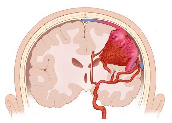 Кровоизлияние в щелевидное пространство между оболочками головного мозга