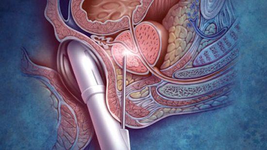Пункция предстательной железы