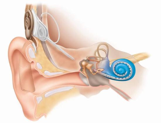 Слуховой имплантат