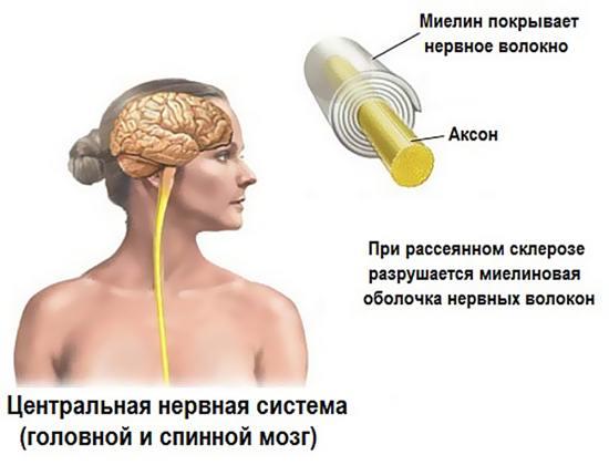 Поражение миелиновой оболочки нервных волокон головного и спинного мозга