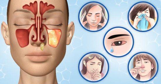 Воспаление гайморовой пазухи