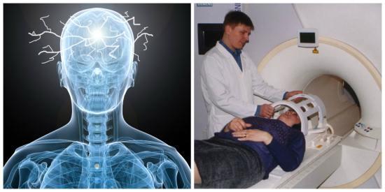 Проведение магнитно-резонансной томографии пациентке, страдающей эпилепсией