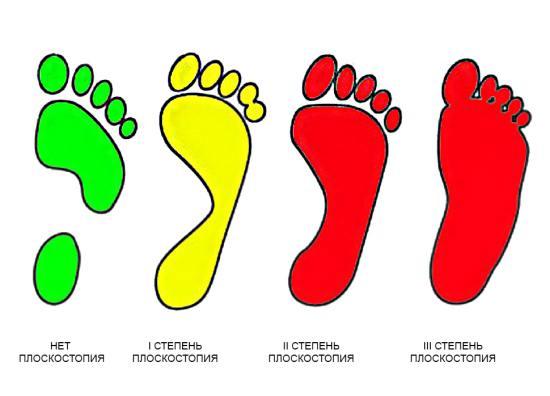 Деформации формы стопы