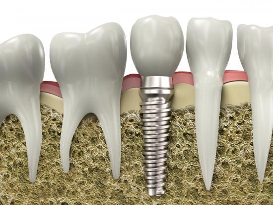 Зубной имплант не смещается под воздействием МРТ