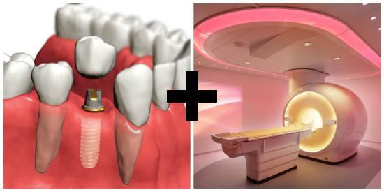 Совместимы ли МРТ и зубные импланты?